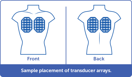 Sample front and back placements of transducer arrays