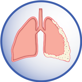 Mesothelioma in lung lining diagram